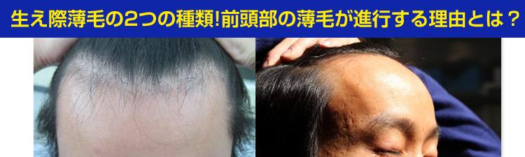 生え際薄毛の2つの種類@前頭部薄毛が進行する理由とは